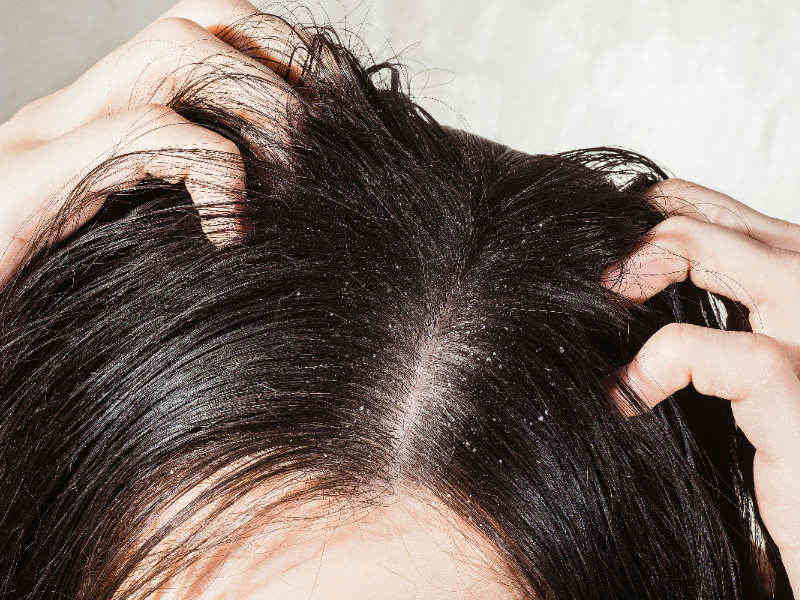 kako pobediti perut u kosi