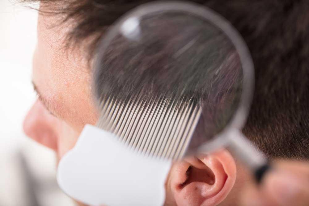 proređena kosa kod muškaraca uzroci