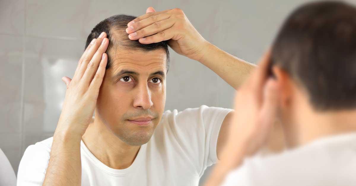Proređena kosa kod muškaraca-ovo je najbolje rešenje!