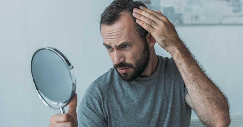 opadanje kose od stresa kod muškaraca