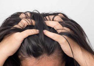 Perutanje kože glave ima trajno rešenje!