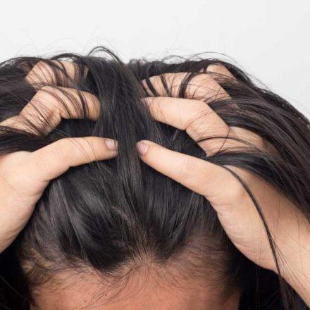 Perutanje kože glave – problem koji ima rešenje!
