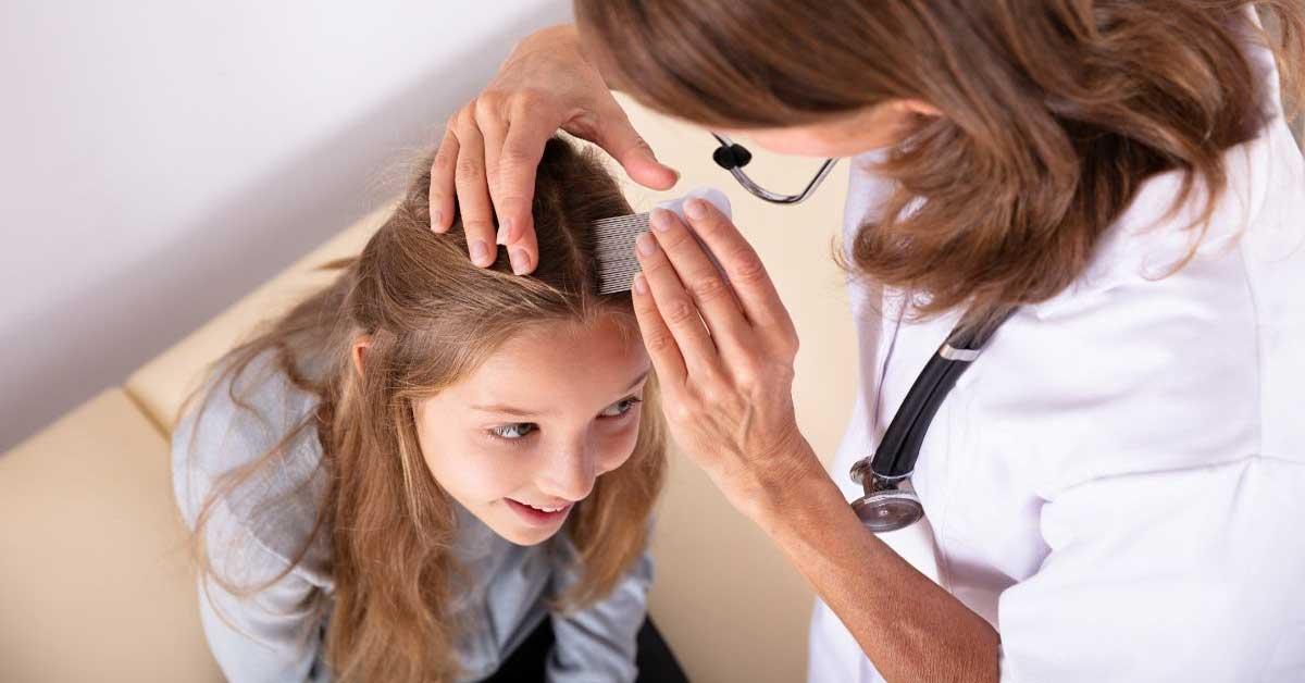 Vaške u kosi kod dece i odraslih! Evo kako da ih se rešite!