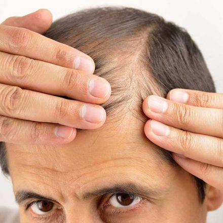 Fiberi za kosu – trenutno rešenje za proređenu kosu!
