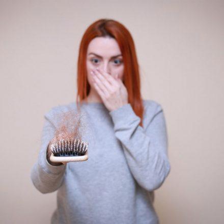 Šta preduzeti kada se javi opadanje kose na temenu?