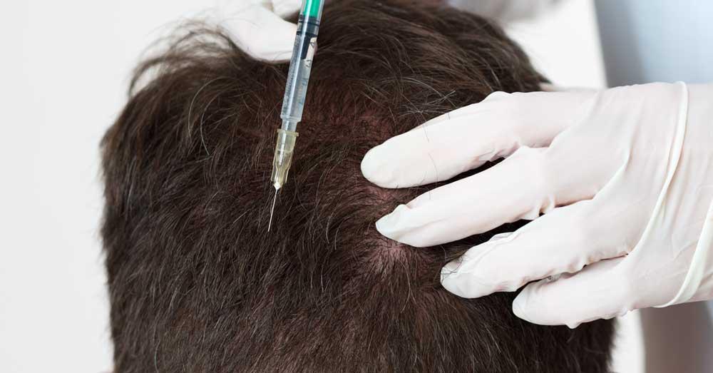 mezoterapija tretman kose