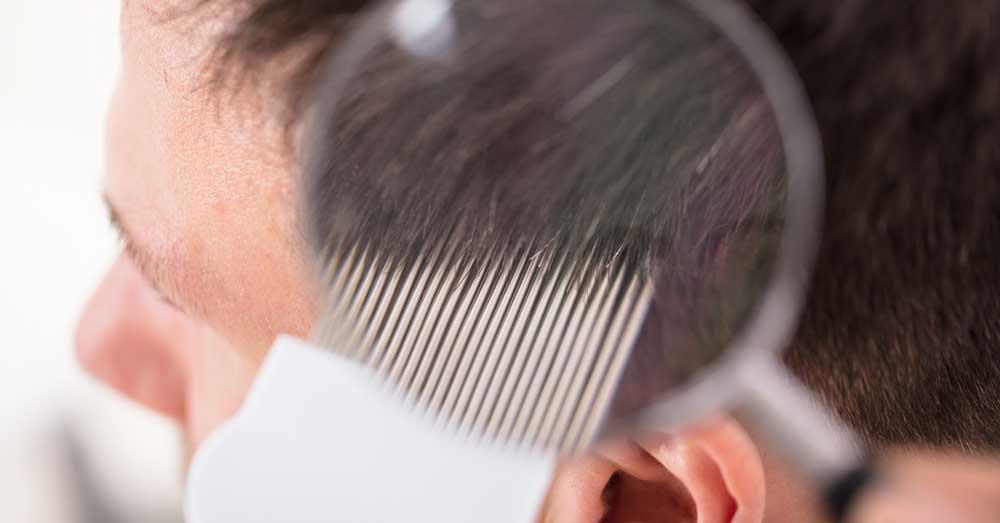 opadanje kose kod dečaka u pubertetu