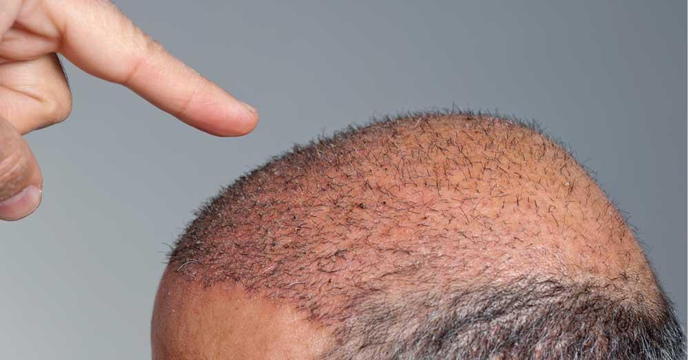 presađivanje kose