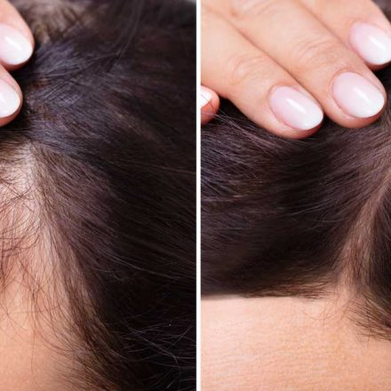 Prirodni lek za rast nove kose koji najbrže deluje!