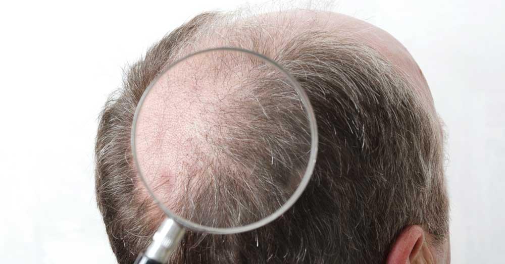 ugradnja kose