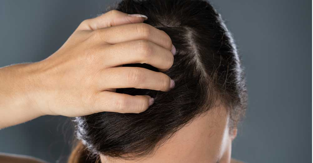 suva koža glave i perut