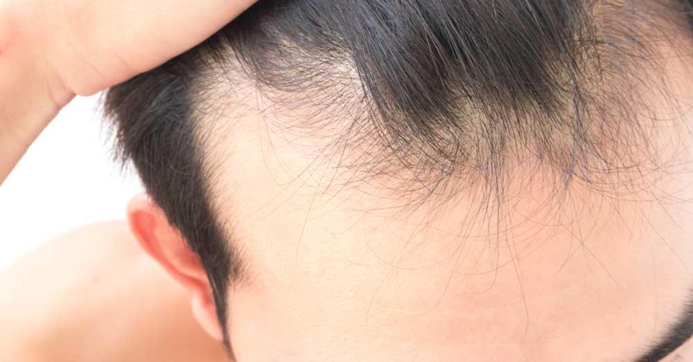 prirodni lek za rast kose
