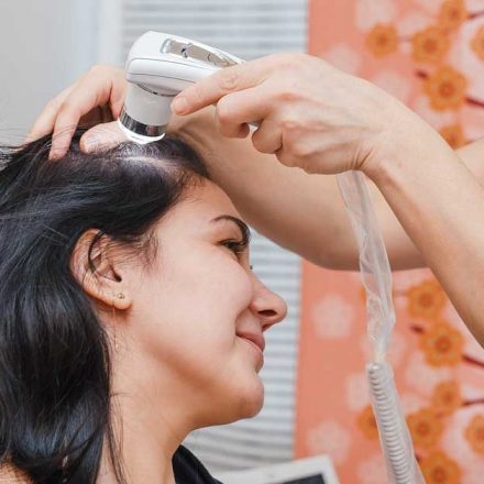 Fotobiostimulacija kose nudi rešenje za gubitak vlasi!