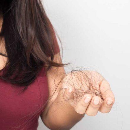 Opadanje kose sa korenom-koliko je zaista ozbiljno?