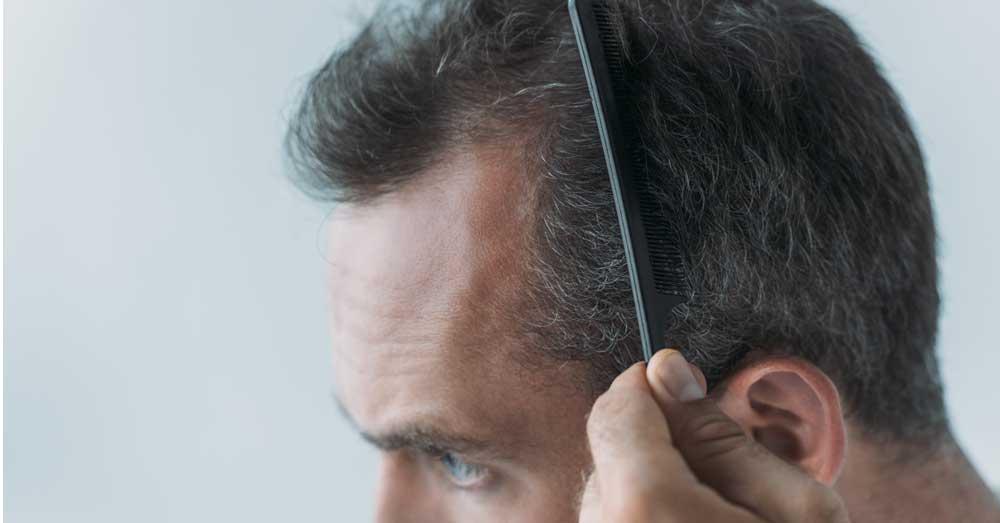 rast kose na zaliscima