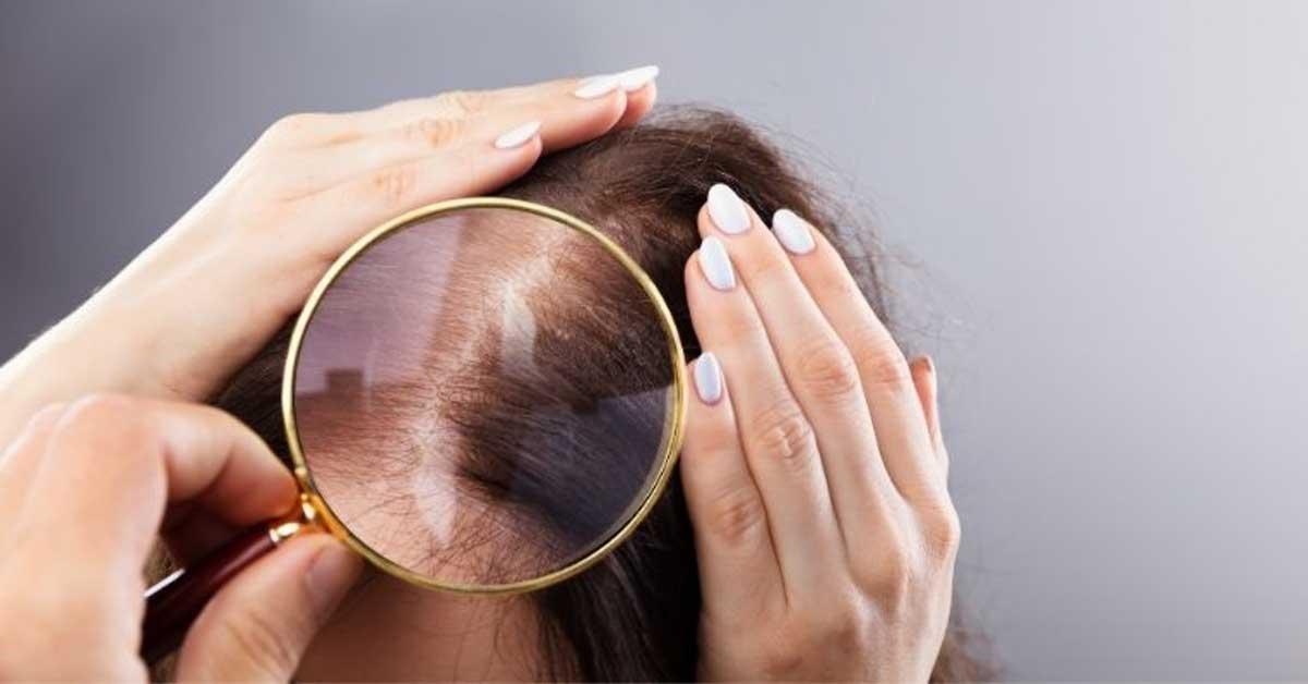 Odmah možete zaustaviti proređivanje kose!Evo i načina!