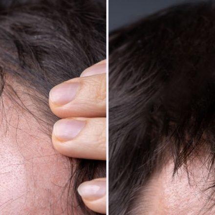 Kako zaustaviti opadanje kose kod muškaraca?