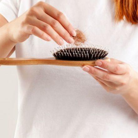 Opadanje kose zbog nedostatka vitamina zaustavite ishranom!