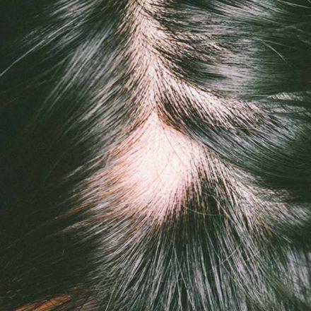 Opadanje kose u krugovima lečite na ovaj način!