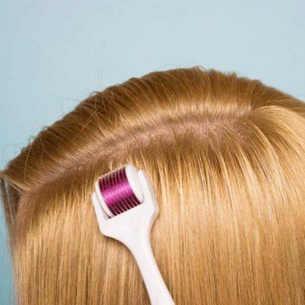 Pomaže li dermaroler za kosu kod opadanja?