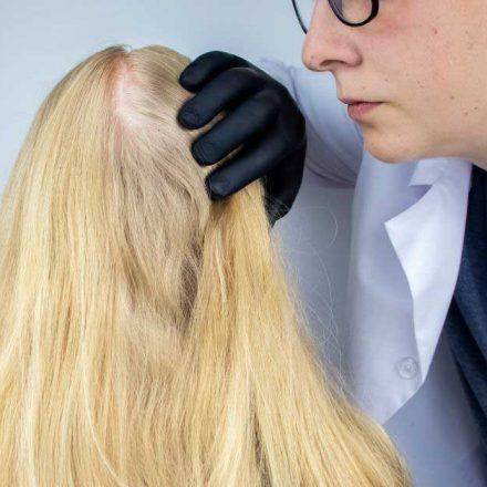Šta je tačno alopecija i kako se može lečiti?